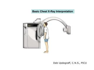 Basic Chest X-Ray Interpretation