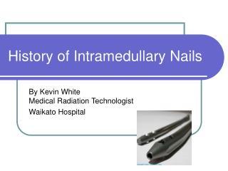 History of Intramedullary Nails