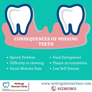 Consequences Of Missing Teeth - Best Dental Clinic in Bangalore - Nelivigi Dental Clinic