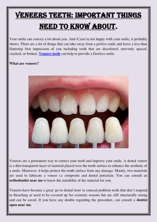 Veneers Teeth  Important Things Need To Know About