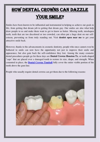 How Dental Crowns Can Dazzle Your Smile