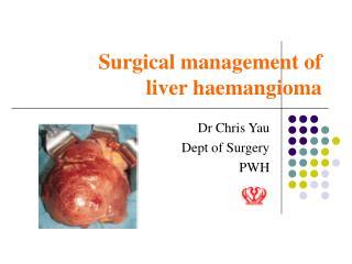 Surgical management of liver haemangioma