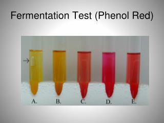 Fermentation Test (Phenol Red)
