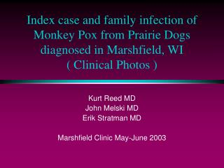 Index case and family infection of Monkey Pox from Prairie Dogs diagnosed in Marshfield, WI ( Clinical Photos )