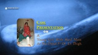 OSTEOSARCOMA-Case-Presentation-ppt-At-Shaheed-Suhrawardy-Med