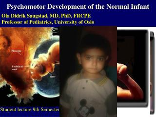 Psychomotor Development of the Normal Infant