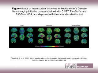 Figure 4  Maps of mean cortical thickness in the Alzheimer's Disease Neuroimaging Initiative dataset obtained with CIVET