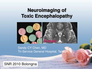 Neuroimaging of  Toxic Encephalopathy