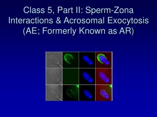 Class 5, Part II: Sperm-Zona Interactions & Acrosomal Exocytosis (AE; Formerly Known as AR)