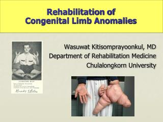 Rehabilitation of  Congenital Limb Anomalies