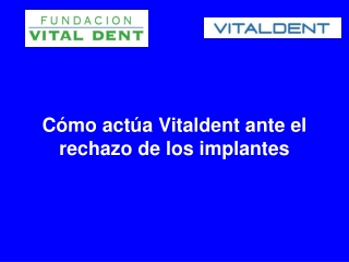 Como actua Vitaldent ante el rechazo de los implantes