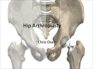 Hip Arthroplasty
