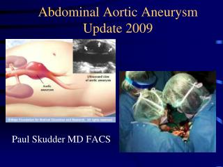 Abdominal Aortic Aneurysm  Update 2009