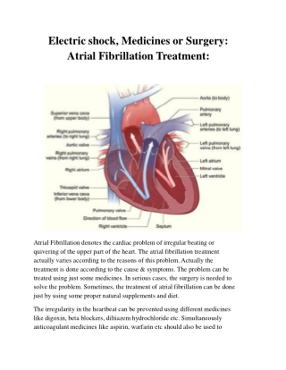 atrial fibrillation treatment