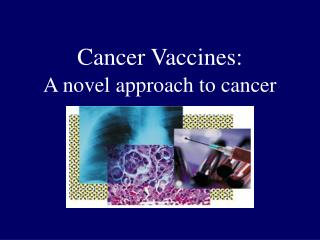 Cancer Vaccines: A novel approach to cancer