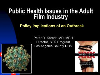 Public Health Issues in the Adult Film Industry