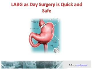 LABG as Day Surgery is Quick and Safe