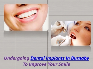 Dental Implants In Burnaby