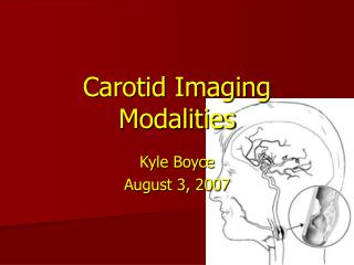 Carotid Imaging Modalities