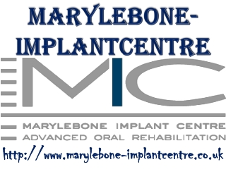 marylebone-implantcentre