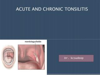 ACUTE AND CHRONIC TONSILITIS