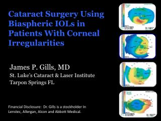Cataract Surgery Using Biaspheric IOLs in Patients With Corneal Irregularities
