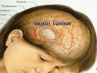 Brain Cancer Prognosis