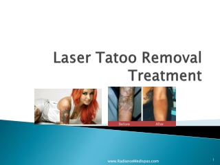 """ Laser Tattoo Removal Procedure, Benefits"""