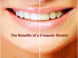 The Benefits of a Cosmetic Dentist