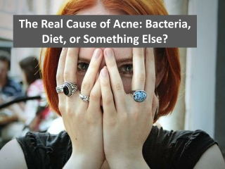 The real cause of acne; bacteria, diet, or something else?