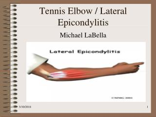 Tennis Elbow / Lateral Epicondylitis