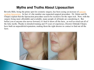 Myths and Truths About Liposuction
