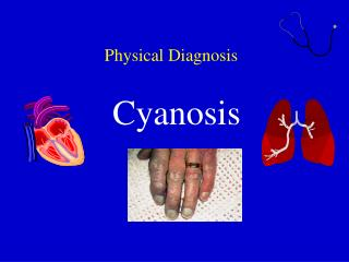 Physical Diagnosis Cyanosis