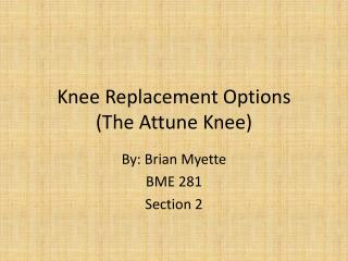 Knee Replacement Options (The Attune Knee)