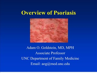 overview of psoriasis