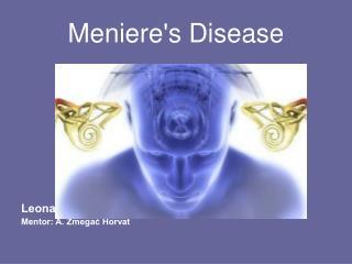 Meniere's Disease