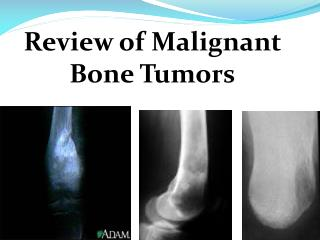 Review of Malignant Bone Tumors