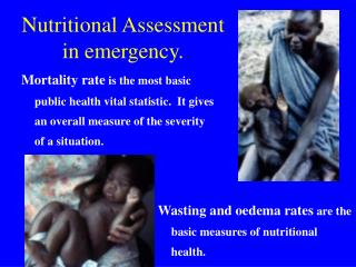 Nutritional Assessment in emergency.