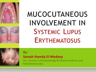MUCOCUTANEOUS INVOLVEMENT IN  Systemic Lupus  Erythematosus