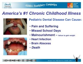 Pediatric Dental Disease Can Cause: