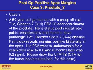 Post Op Positive Apex Margins Case 3: Prostate_3