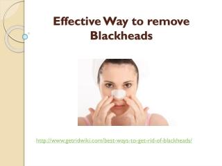 Effective Way to remove Blackheads