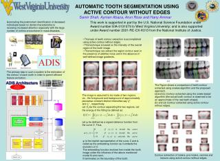 AUTOMATIC TOOTH SEGMENTATION USING ACTIVE CONTOUR WITHOUT EDGES