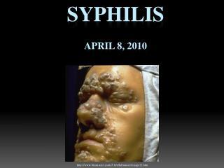 Syphilis April 8, 2010