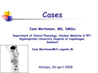 Cases Jann Mortensen, MD, DMSci Department of Clinical Physiology, Nuclear Medicine & PET, Rigshospitalet Universit
