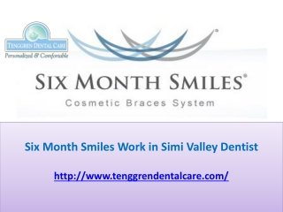 Six Month Smiles Work in Simi Valley Dentist