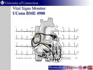 Vital Signs Monitor UConn BME 4900