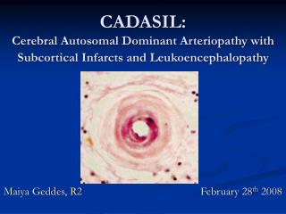CADASIL: Cerebral Autosomal Dominant Arteriopathy with Subcortical Infarcts and Leukoencephalopathy