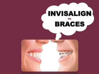 Expert Cosmetic Dentist in Elk Grove for braces