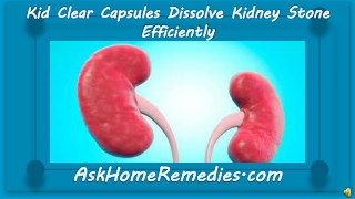 Kid Clear Capsules Dissolve Kidney Stone Efficiently